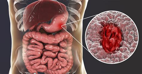 Natural Remedies for Peptic Ulcer - Wildwood Lifestyle Center